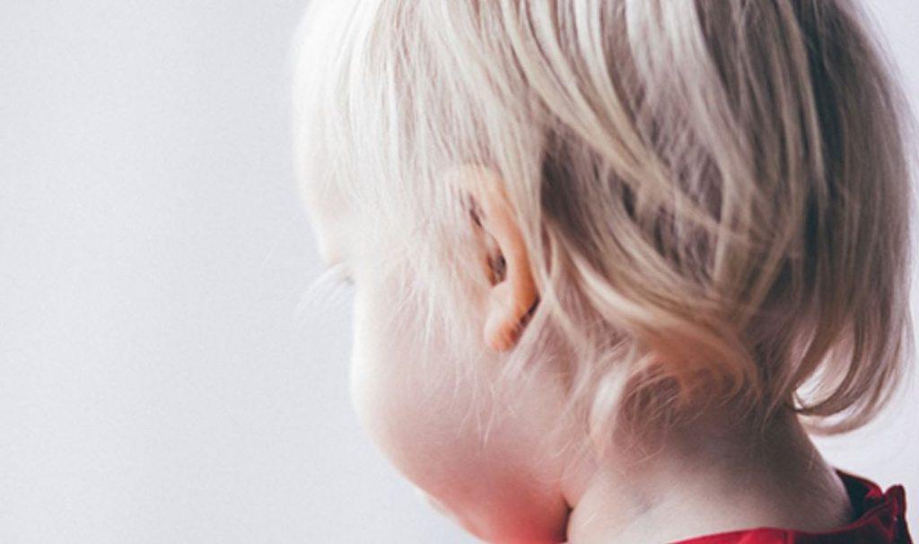 паротит заушка симптоми лечение ваксина